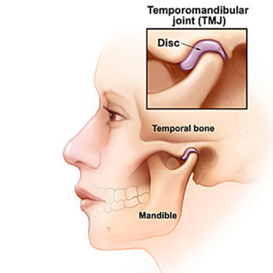 Temporal Mandibular Joint (TMJ) | Fairview Dental Centre